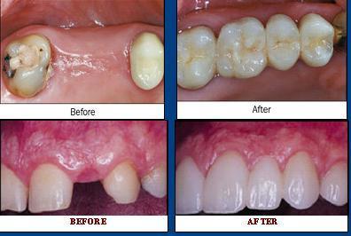 Dental centre in indirapuram ghaziabad delhi agarwal dental cure dental centre in indirapuram ghaziabad delhi agarwal dental cure care centre solutioingenieria Gallery
